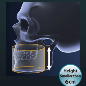 Dental CT & 3D Imaging