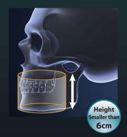Dental CT & 3D Imaging