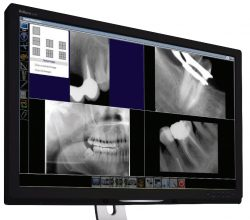 Dental Practices can now convert to digital x-ray processing cheaply
